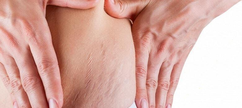 herbal treatment for stretch marks